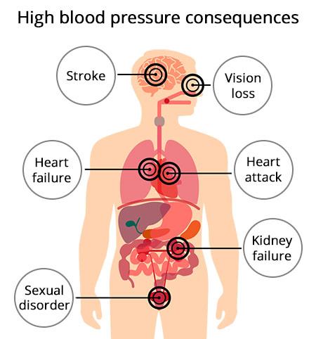 Top NYC High Blood Pressure Doctor / Hypertension Cardiologist